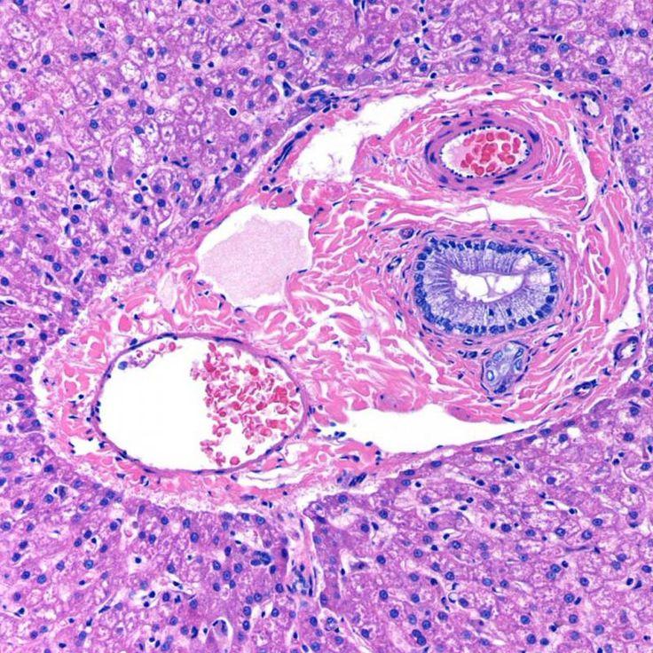 Histology - Liver - Portal Triad