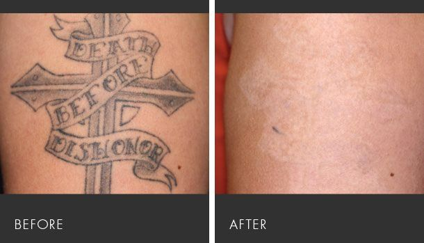 17 best images about laser medical treatments at for Laser hair removal over tattoo