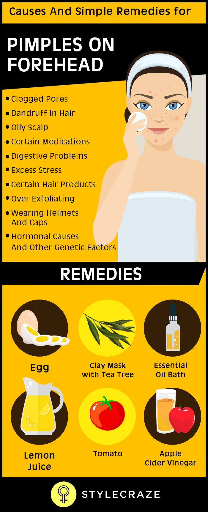 For a pimple-free skin, it is important to understand what causes forehead pimples. They cannot be your fault all the time. Contrary to the popular belief, these pimples or zits are not always caused by external factors such as food, skin care regimen or exercises. They are caused by a combination of physiological factors as well. They also develop far beneath the skin's surface that is beyond our control.