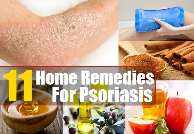 Home Remedies For Psoriasis - Natural Treatments & Cure For Psoriasis | Health Care A to Z