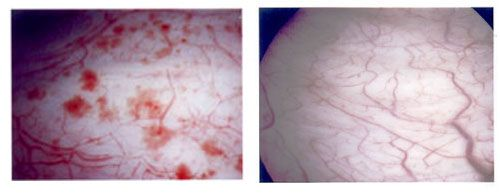 The image above and on the left shows the inner lining of a bladder with interstitial cystitis vs. a normal bladder on the right.