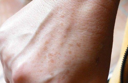 Come eliminare macchie dalle mani - 1 succo di limone,2 Estrarre il gel dall' aloe vera e applicarlo due volte al giorno. 3 Se riuscite a reperire del siero di latte, inoltre, potete immergervi le mani o sfregarcele con dell'ovatta imbevuta. 4 Mescolare aceto di mele e crema in parti uguali. Usate questa miscela per qualsiasi parte del corpo, mani incluse. 5 Utilizzare l'acqua ossigenata, grande alleato contro le macchie. Imbevete dell'ovatta nel perossido di idrogeno,....