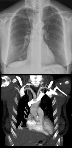 Multiple small round nodules on CXR. Differential includes metastases, granulomata, hamartomata, and pulmonary arteriovenous malformations. pAVMs may be asymptomatic or cause symptoms due to a right-to-left shunt (dyspnoea and embolism). CT shows feeding pulmonary arterial branch and draining pulmonary venous branch.  #FOAMrad #FOAMed #radiology