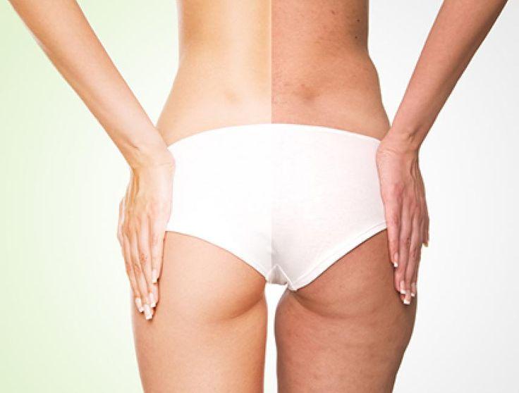 La cellulite si verifica a causa di molte ragioni, come lo squilibrio ormonale, l'alimentazione irregolare, una ridotta attività fisica, una predisposizione
