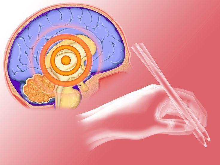 Parkinson's Disease Dementia: Symptoms, Diagnosis and Treatment #TreatingDementia