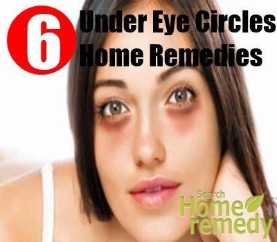 6 Under Eye Circles Home Remedies
