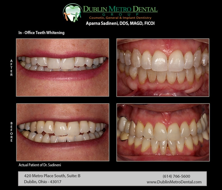 In-Office Teeth Whitening | Show off your red carpet smile - Dr. Sadineni used Opalescence Boost in-office teeth whitening system to enhance discolored teeth couple of shades lighter than they were before to increase confidence level in her smile.  #teethwhitening #homewhitening #opalescence #whiteningtrays #opalescenceboost  #oralhealth  #brightersmile  #healthiersmile  #zoomteethwhitening