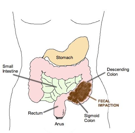 Fecal Impaction – Causes, Symptoms, Diagnosis, Treatment and Ongoing care Incomplete evacuation of feces, leading to formation of a large, firm, immovable mass of stool in the rectum (70%), sigmoid flexure (20%), or proximal colon (10%)   Read more: http://health.tipsdiscover.com/fecal-impaction-causes-symptoms-diagnosis-treatment-and-ongoing-care/#ixzz2aAwE9iII