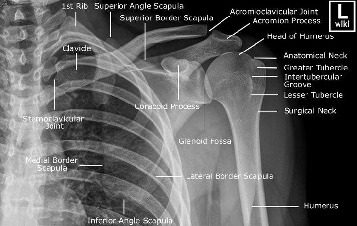 Shoulder Radiographic Anatomy - wikiRadiography
