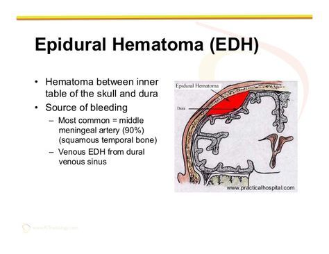 diagram of epidural hematoma symptoms - Google Search