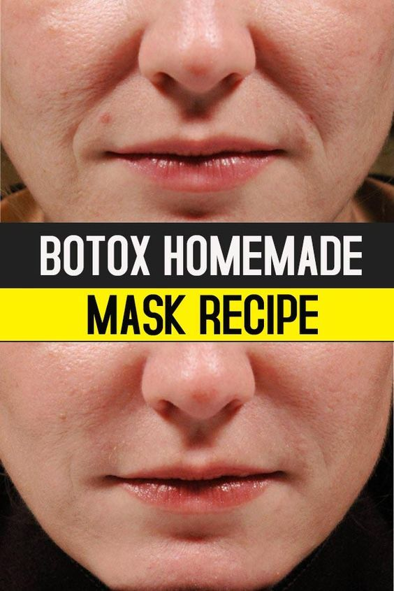 Botox Homemade Mask Recipe #botox #face #beauty #mask #homemade
