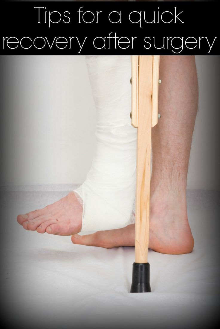 Not all foot surgeries are the same. The type of surgery you have will greatly determine your recovery time. At Triad Foot Center, we have a few tips and tricks to make getting back on your feet faster and less painful. http://www.triadfoot.com/2013/08/22/tips-for-a-successful-foot-surgery-recovery/ #TriadFootEducates