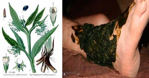 La consolida è una pianta erbacea che viene da secoli impiegata nella medicina tradizionale cinese [Leggi Tutto...]