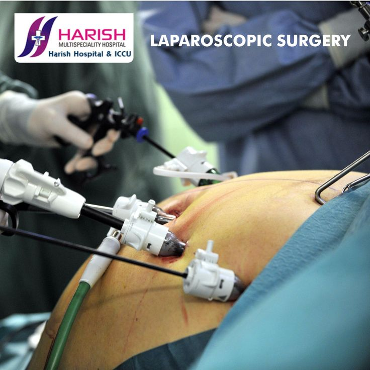This procedure is performed to determine the abnormalities/defects of the uterus, fallopian tubes and/or ovaries such as endometriosis, fibroid, congenital abnormalities and polycystic ovaries etc.  #LaparoscopySurgery #LaparoscopicSurgeryinNerul #LaparoscopicSurgeryinNaviMumbai #LaparoscopicSurgeoninNerul #LaparoscopicSurgeoninNaviMumbai Visit- http://www.harishhospital.com/laparoscopy_infertility.html