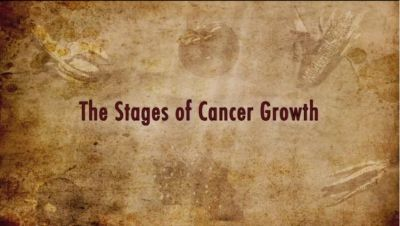 "*""Colin Campbell Explains Cancer Growth"" - DrCarney.com - Linda Carney MD"
