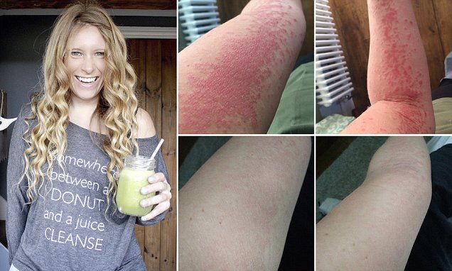 Former psoriasis sufferer cured skin with a bespoke diet | Daily Mail Online