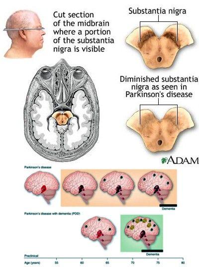 Parkinson-Krankheits-Symptome Die wichtigsten Symptome der Parkinson-Krankheit während der Durchführung und Kontrolle von Bewegungen manifestiert:  Signifikante Zittern in Ruhe, um von essentiellem Tremor, die bei Bewegungen tritt meist zu unterscheiden. Bradykinesie (Verlangsamung der Bewegungen), ist eine typische Erscheinung der Unbeweglichkeit der Arme beim Gehen. Die Gesichtszüge sind sehr festen und monotoner Stimme. Muskelsteifheit Zu