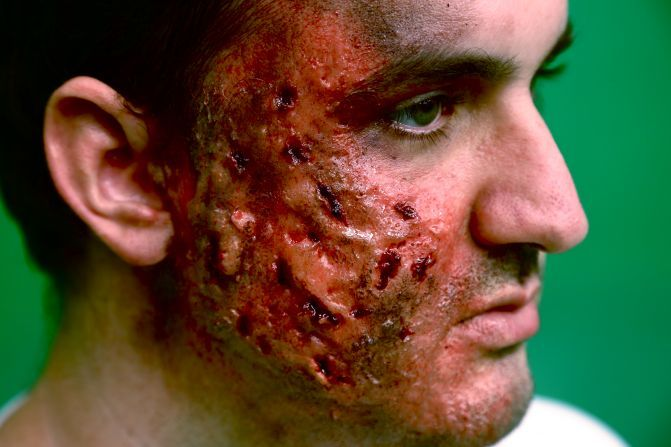 Burned face prosthetic makeup SFX prosthetics and ...