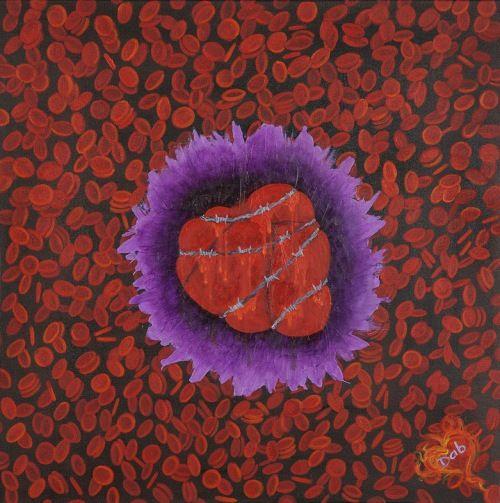"""""""Umanità intrappolata""""-Vuole esprimere la crisi in cui si trova  l'umanità, rappresentata da un cuore intrappolato in un filo spinato che lo stringe sempre più facendolo sanguinare. Sullo sfondo i globuli rossi si caricano di  un duplice valore; assumono valenza negativa quando pensiamo a loro come perdita di sangue, ma contemporaneamente positiva se interpretati come energia vitale per vincere il collasso e superare la crisi strutturale dell'epoca in cui viviamo."""