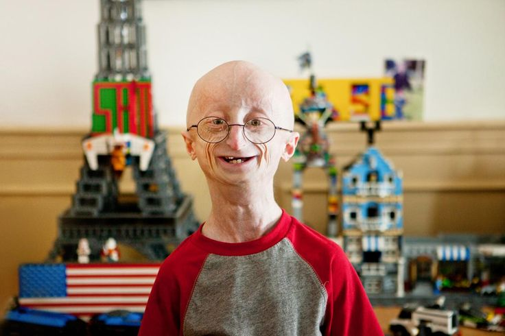 Photo of Sam Berns who died from Progeria.