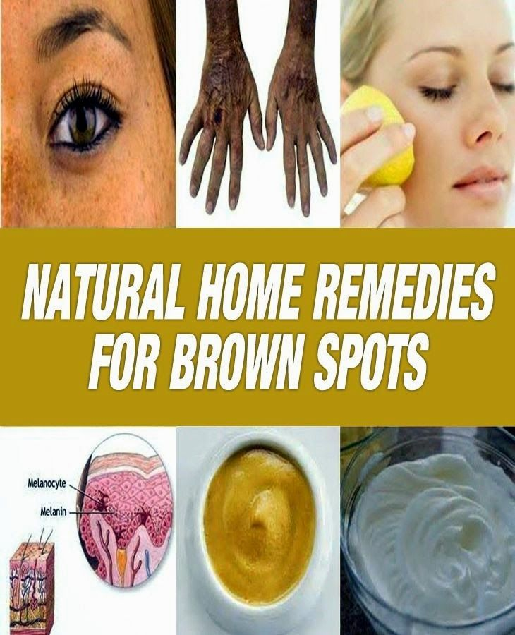 Natural Home Remedies for Brown Spots | Medi Tricks