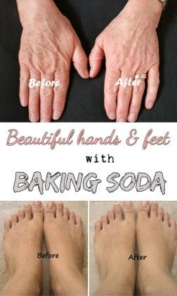 How to Beautiful hands and feet with baking soda