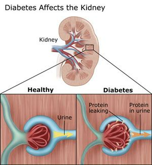Diabetic Nephropathy: Diabetic Nephropathy is secondary disease of Diabetes. It is leading cause of Renal Failure worldwide. But not all with Diabetes will develop kidney damage.