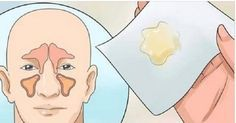 Como eliminar a congestão nasal em poucos minutos sem o uso de medicamentos! | Cura pela Natureza