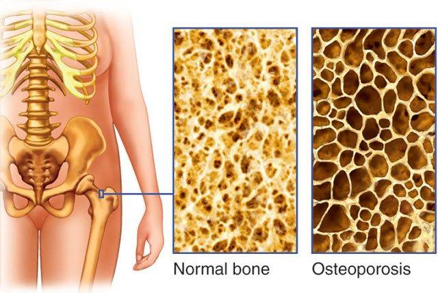 13+ Osteoporosis es cancer en los huesos information