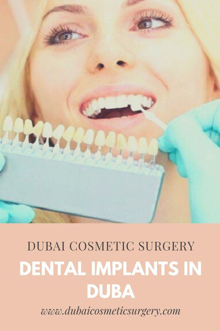 Dental Implants Dubai in 2020 Dental implants, Dental