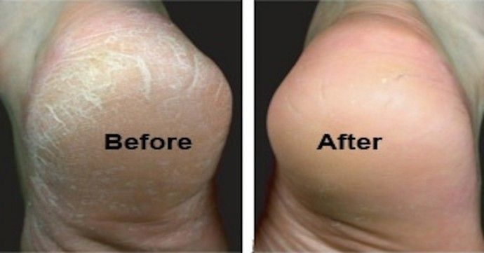 baking soda for smooth feet