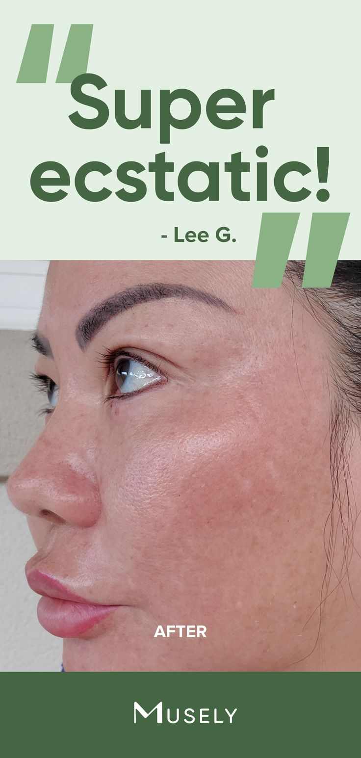 Pin by LADYS H.O.B on The Good Skin Diet   Skin benefits