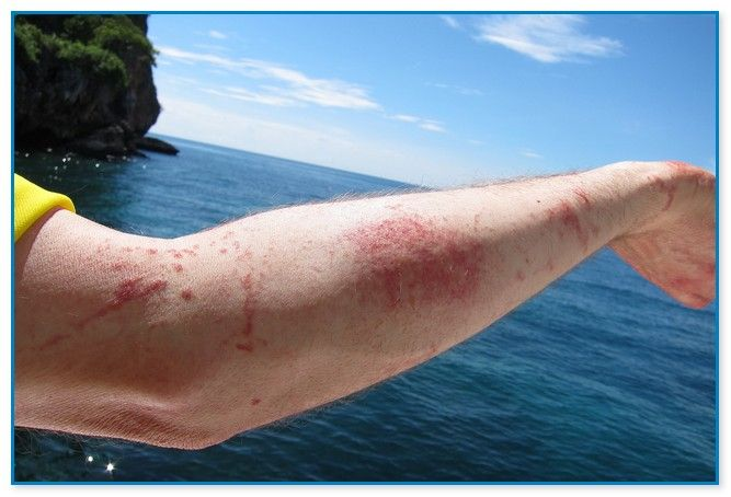 Jellyfish sting treatment
