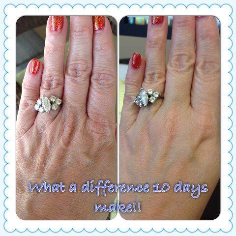 rodan and fields before and after pictures - Redefine hand treatment regimen.  https://tristaenb.myrandf.com/