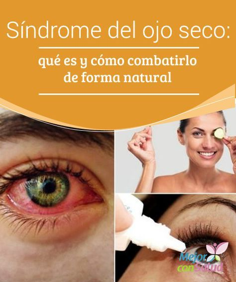 #Síndrome del ojo seco: qué es y cómo #combatirlo de forma natural El síndrome del ojo seco es una enfermedad que se produce por la falta de #lubricación en los #ojos. Conoce por qué se produce y cómo tratarla naturalmente. #RemediosNaturales