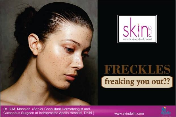 #Freckles freaking you out?? Come visit our clinic for laser freckle removal which is non-invasive. This treatment also stimulates the deeper layer of the skin making the skin smoother and youthful.