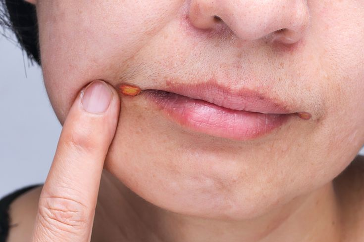 In angular cheilitis, the patient experiences irritation & soreness in the affected corners of the mouth. Lips feel dry and cracked. The affected person can't open the mouth properly because the corners of the mouth are dry, cracked, red, swollen, & painful. To know more read the above article.