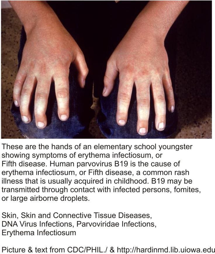 Viral Infection Link To Sjogren S Syndrome: 210 Best Images About Meshotelioma Cancer On Pinterest