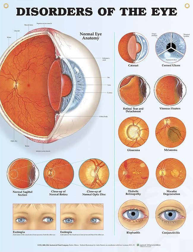 Disorders of the Eye anatomy poster illustrates cataract, corneal ulcers, retinal tear and detachment, floaters, glaucoma, more.