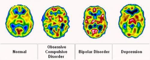 13 Warning Signs of Mental Illness