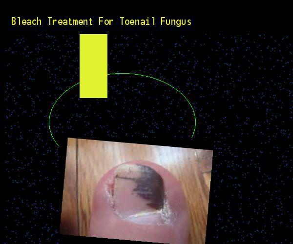 Is bleach an effective treatment for toenail fungus?