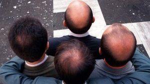 Cara Menumbuhkan Rambut Botak Tengah