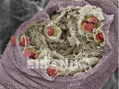Human placenta. www.eikonika.net. Credit to Dr. Yorgos Nikas