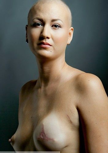 Cancer breast age patients of
