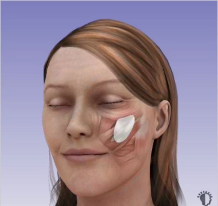 Cheek Implants - Fast and Complete Overview