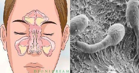 Naso tappato costante e sinusite cronica? La causa è nel tuo intestino