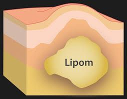 Lipoma is a benign fatty soft tissue growth beneath the skin.  If a lipoma is bothering you and you are looking to get it removed, contact los angeles lipoma removal expert, Dr. Kamrava.