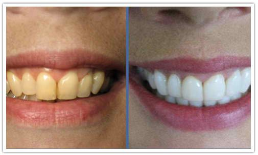 191 best porcelain veneers images on pinterest porcelain veneers baking soda teeth whitening before and after wow its amazing what you can find solutioingenieria Gallery
