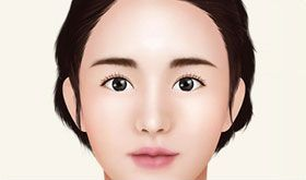 fixation and firm suturing for face lifting