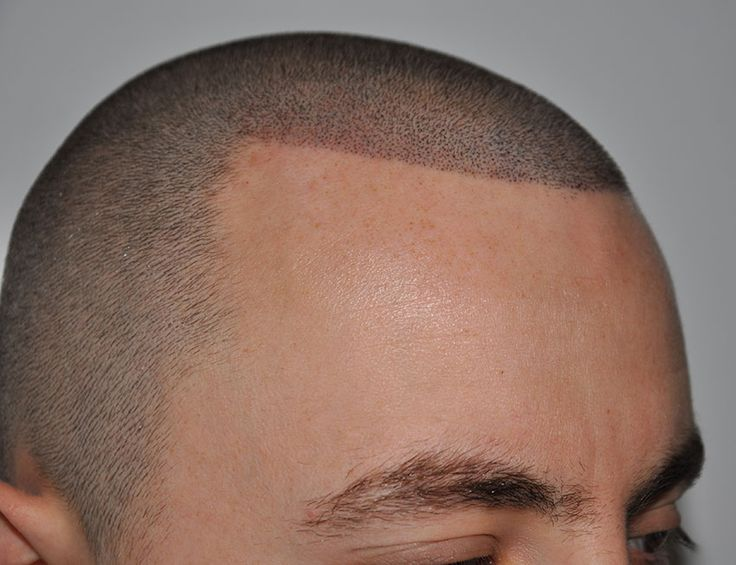 Resultado de imagem para pigmentação capilar
